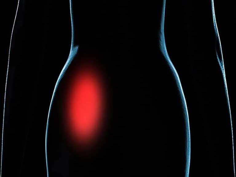 סקרואילאיטיס מה גורם לדלקת הזאת