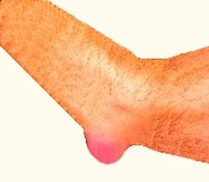 בורסיטיס במרפק אבחון וטיפול