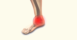כאבים בקרסול טיפול