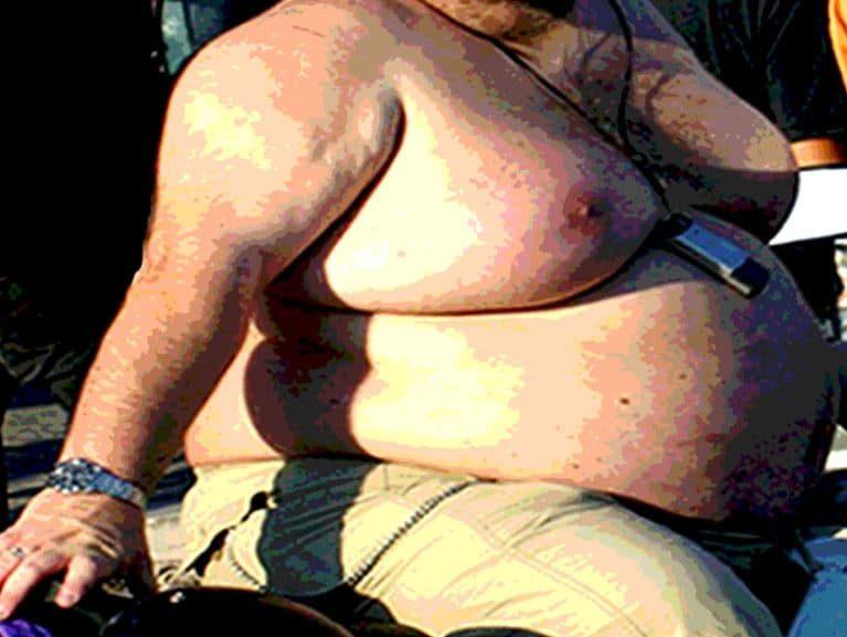 השמנה גורמת למגבלות גופניות