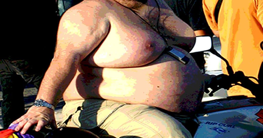 השמנה גורמת למגבלות תפקודיות