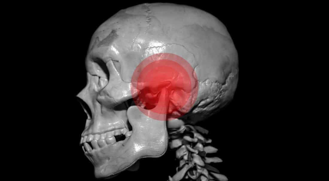 הרצאה בנושא תסמונת מפרק הלסת