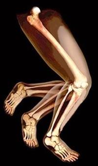 כאבים ברגליים מה גורם להם