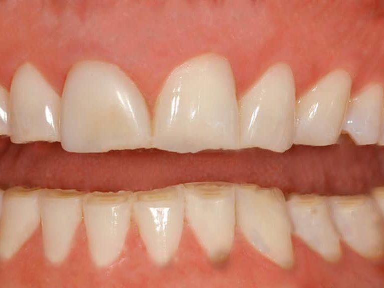 חריקת שיניים למה זה עלול לגרום