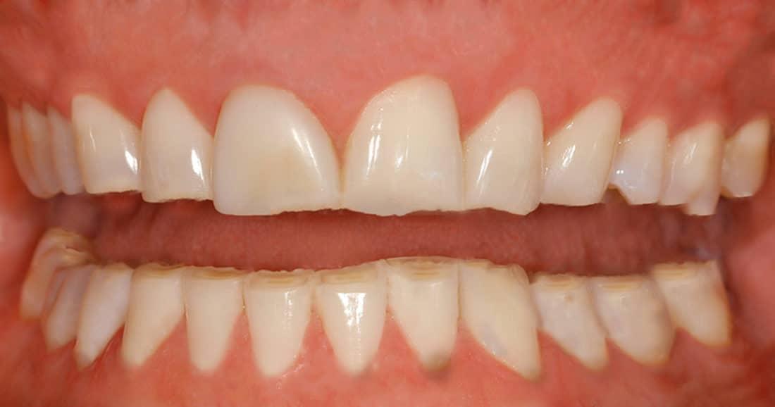 חריקת שיניים