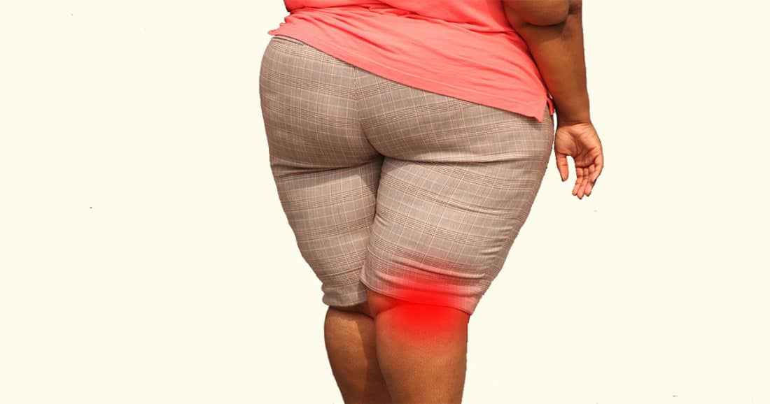 כאבי פרקים בגלל השמנה