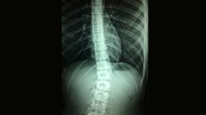 עקמת בגב אבחון וטיפול