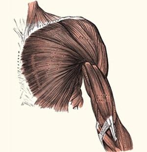 תסמונת הצביטה בכתף מה גורם לה