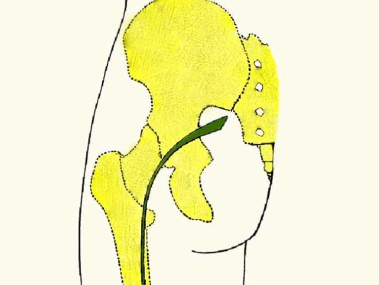 סיאטיקה אבחון וטיפול