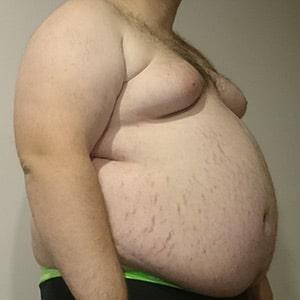 שינויים ניווניים בשלד בגלל השמנה