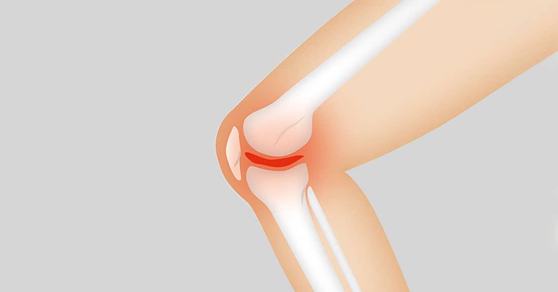 כאבי פרקים גורמים אפשריים