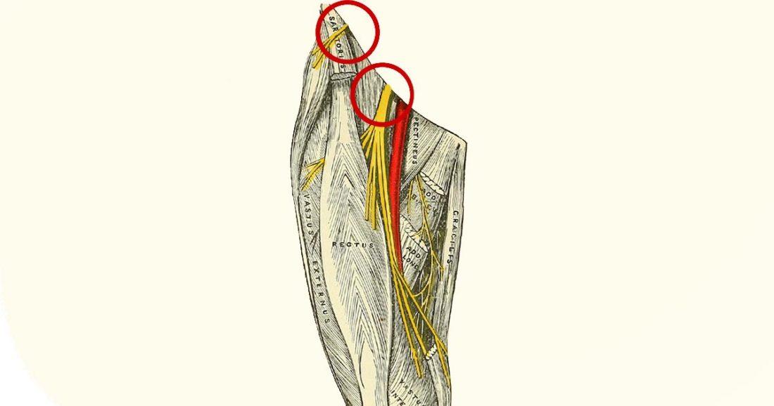 נוירופתיה של עצב הירך