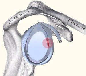 קרע לברום בכתף חכו עם הניתוח
