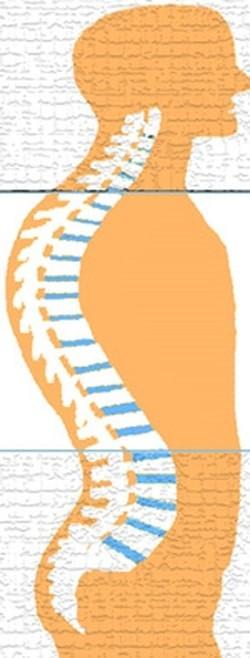 קיפוזיס אבחון וטיפול