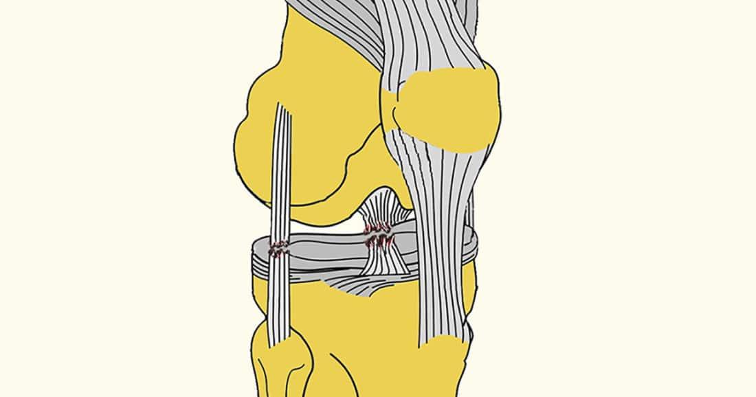 מתיחת רצועה בברך