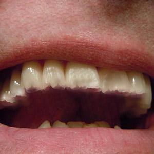איך מונעים חריקת שיניים