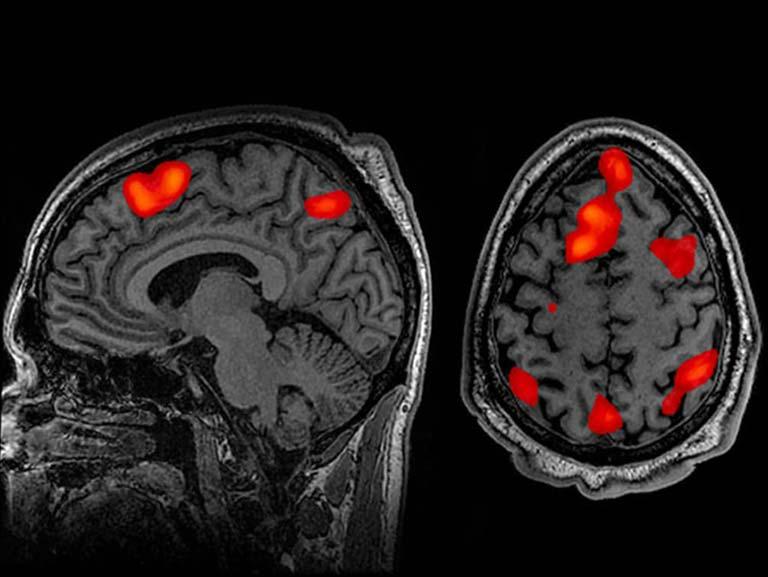 כאבי גב תחתון זה קשור למבנה המוח
