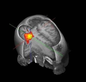 האם כאב גב קשור למבנה המוח