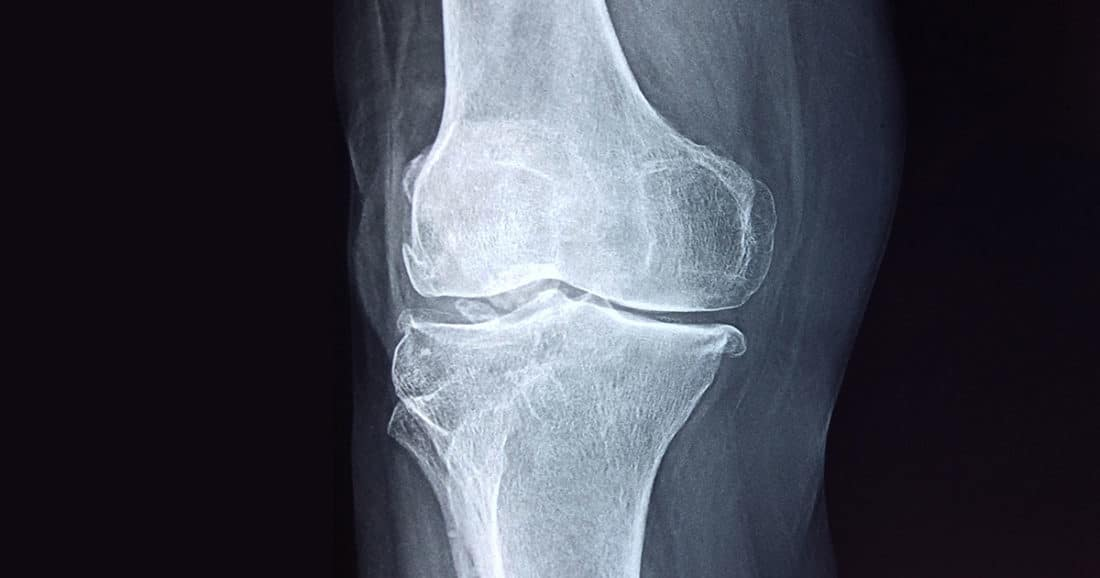 כאבי ברכיים? הרזיה מועילה