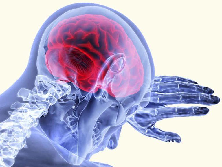 הכאב מושפע גם ממבנה המוח