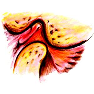 איך לאבחן כאב במפרק הלסת