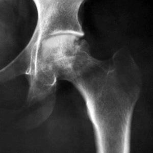 כאבים במפשעה אבחון