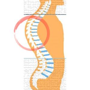כאבי גב עליון אבחון