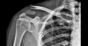 כאבים בכתף אבחון