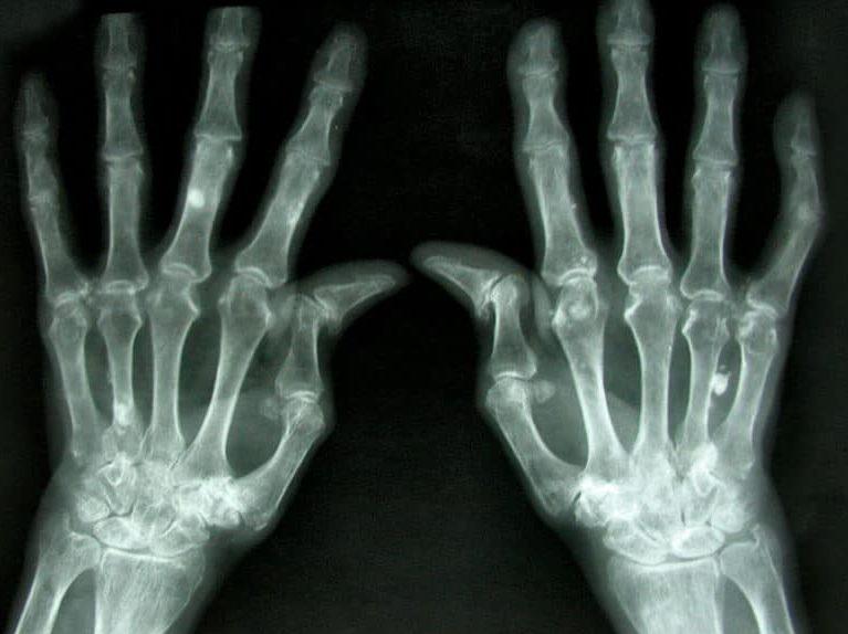 מחלה אוטואימונית אבחון וטיפול