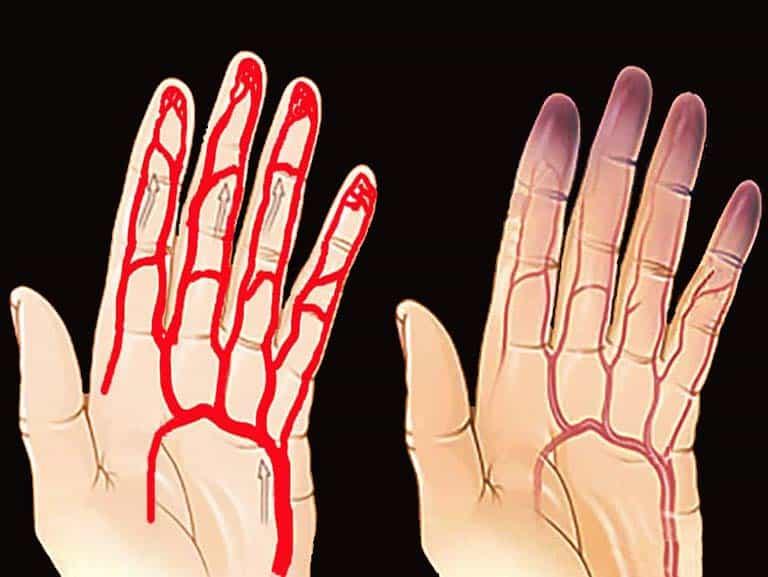 תסמונת ריינו אבחון וטיפול