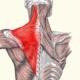 נקודות הדק בשריר אבחון וטיפול