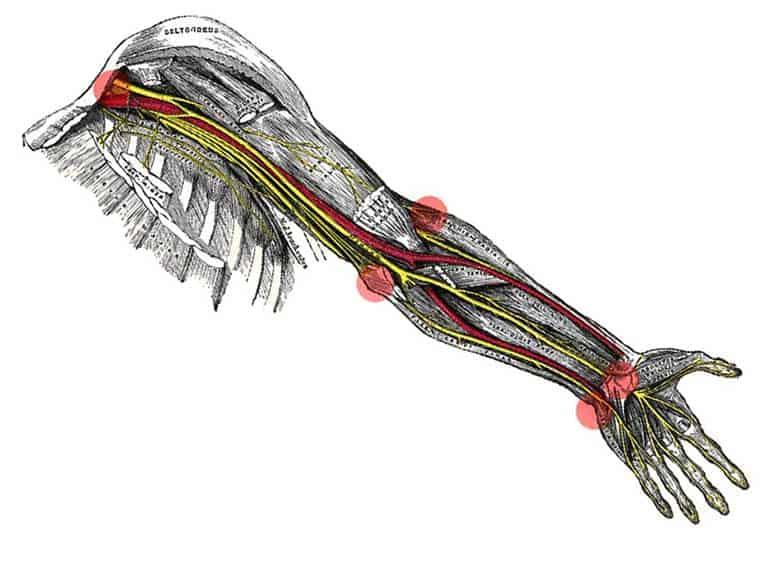 לכידה של עצב פריפרי