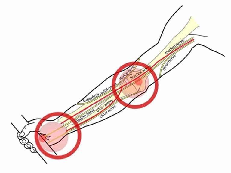 נוירופתיה של עצב התווך