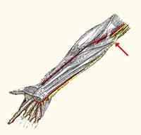 נוירופתיה של עצב הגומד בתעלה הקוביטלית