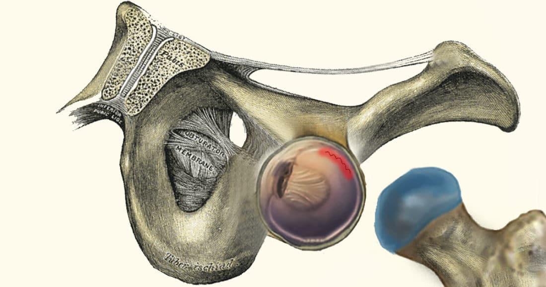 קרע לברום בירך אבחון וטיפול