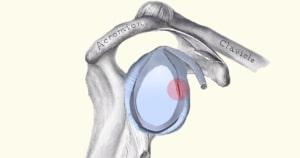 קרע לברום בכתף אבחון וטיפול