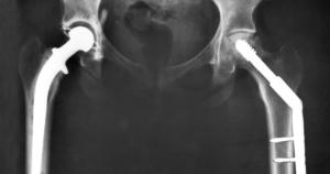 ניתוח שבר בירך צריך להתבצע מהר