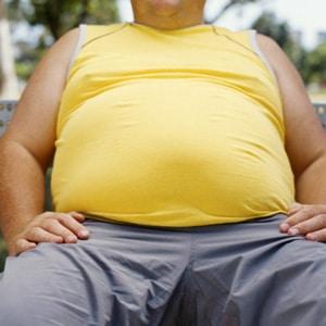 מגפת ההשמנה קוטלת חיים