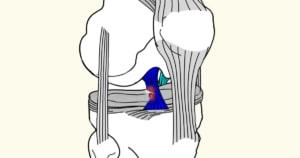 קרע ברצועה הצולבת בברך