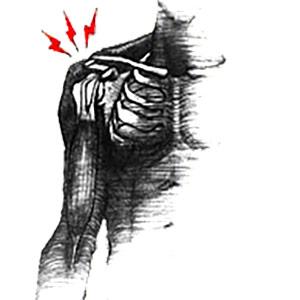 תסמונת הצביטה בכתף אבחון וטיפול