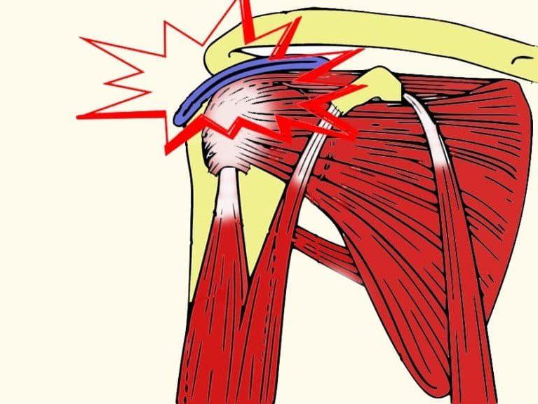צביטה בכתף אבחון וטיפול