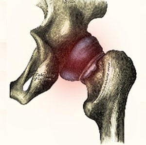 מפרק הירך אנטומיה וביומכניקה