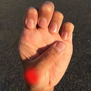 כאבים בכף היד טיפול