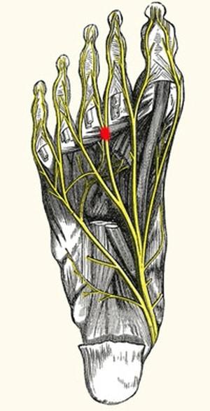 כאבים בכף הרגל טיפול