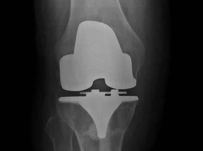 כאב בברך טיפול ללא סטרואידים