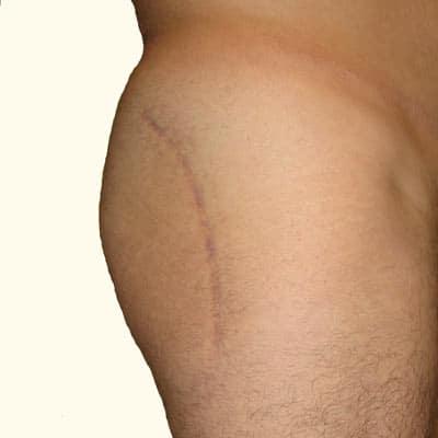 סיבוכים לאחר ניתוח ירך