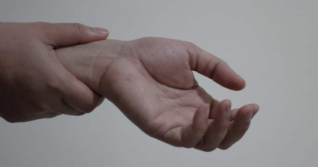 מבנה כף היד