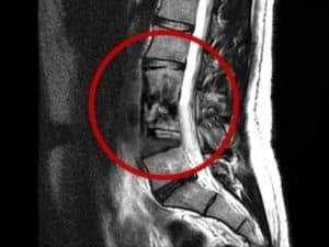 דלקת זיהומית בעמוד השדרה