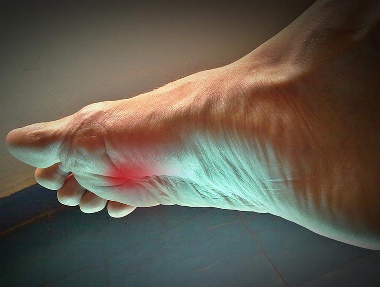 פציעות שכיחות בכף הרגל ומניעתן