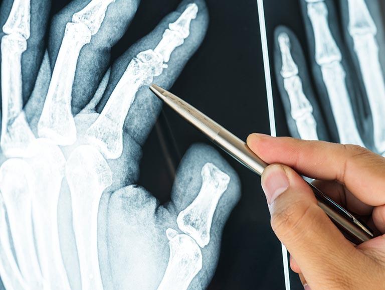 פציעות שכיחות בכף היד ומניעתן